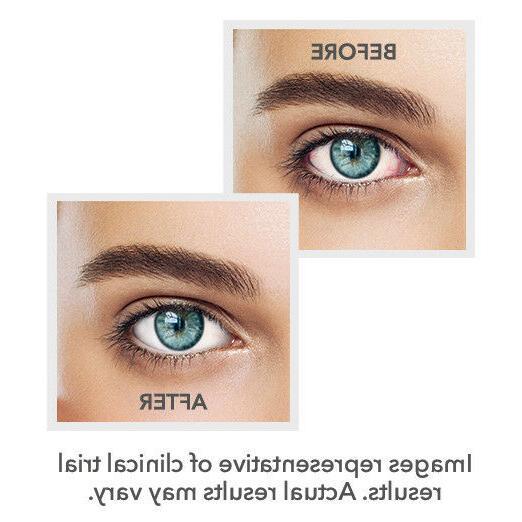 Bausch + Redness Eye 0.08