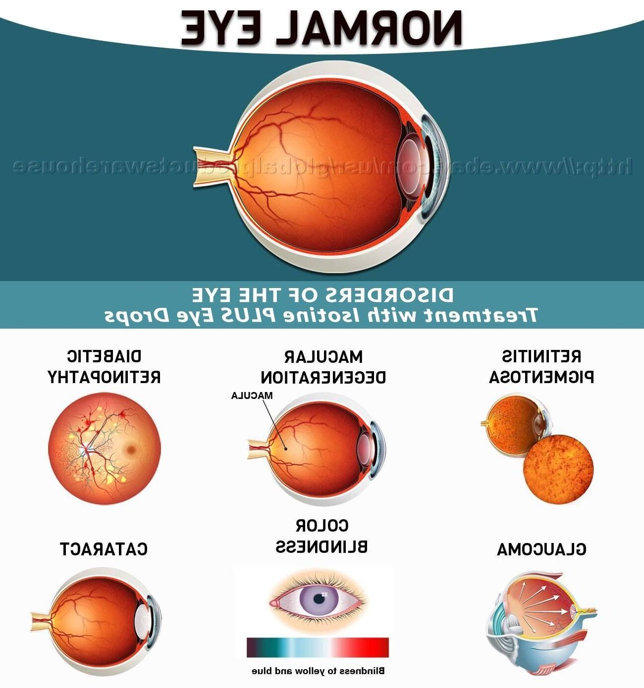BEST Cataract , Can Cataracts C Bright